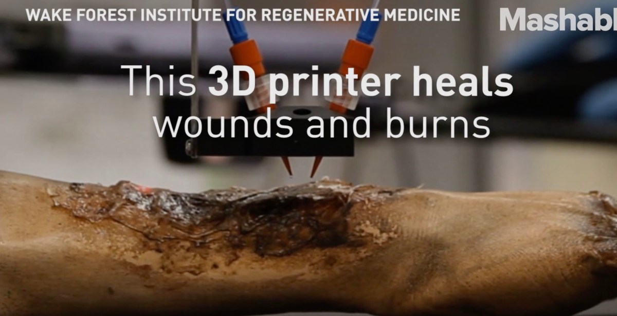 Severe burns can heal faster with this 3-D skin printer